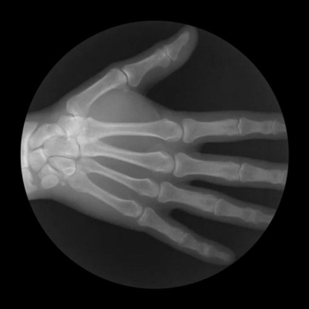 Cameron Drake create these excellent animated GIFs that reveal how various joints in our bodies bend and fold and work under the all seeing see through eye of the X-ray. Under our skin, we all have the same beautiful machinery.