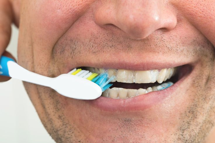 cleaning pearly whites with stand sodium #get #whiten #teeth #whitening #how #