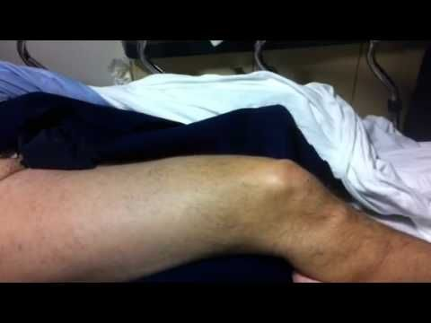 Anterior cruciate ligament injury -- Positive drawer test - Snow kite ac...