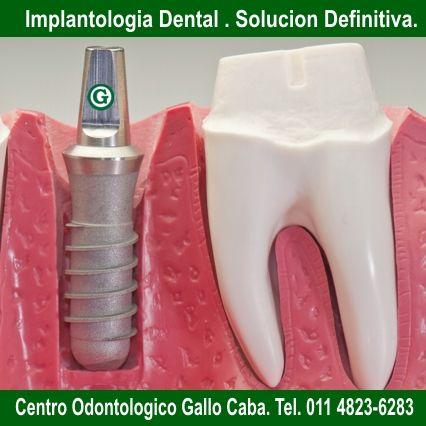 Centro Odontologico Gallo Cuidad Autónoma de Buenos Aires - Argentina Tel. 011 4823-6283 www.odontologiagallo.com.ar
