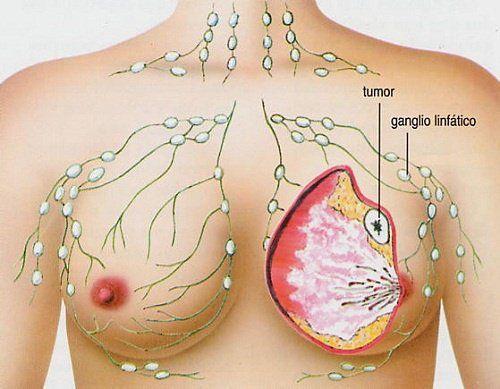Los 5 tipos de cáncer más frecuentes en la mujer - Mejor con Salud | mejorconsalud.com