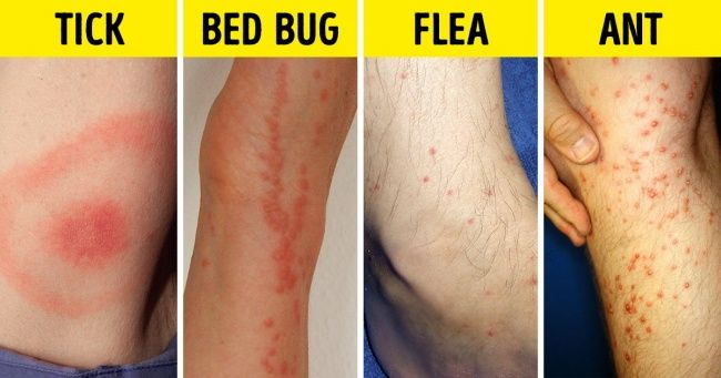 Bed Bugs Disgusting Picadura Chinche Chinches Picaduras