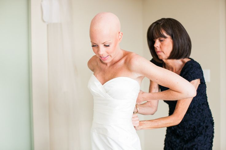 ourageous bride proves bald is beautiful