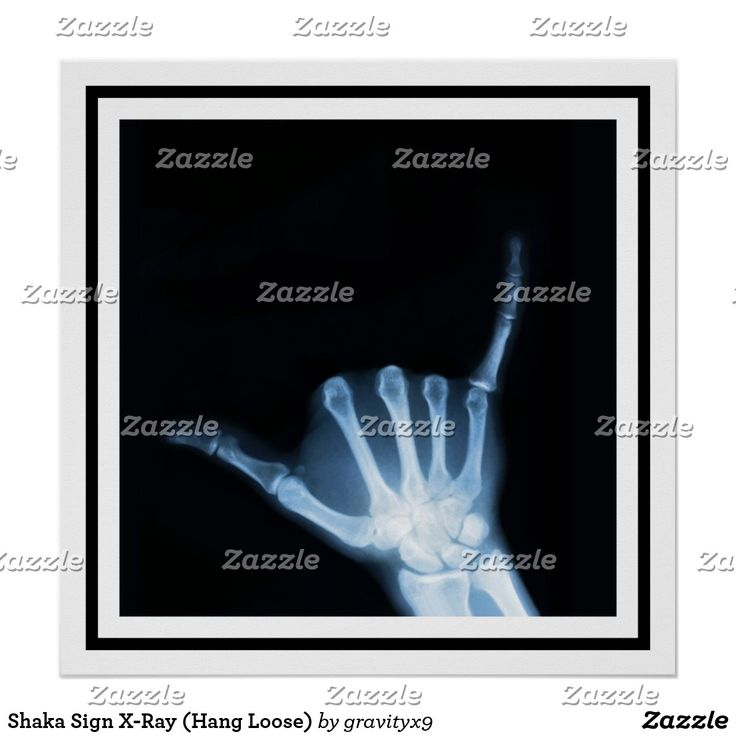 A Welcoming gesture by Gravityx9 .  - Shaka Sign X-Ray (Hang Loose) Poster