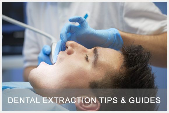 Read today's post to learn more about #Dental #Extraction procedure. Different stages of the procedures and post op care.  #dentist #dentistryisfun #dentistrytips   http://www.westladentalcare.com/dental-extraction-tips-guides/
