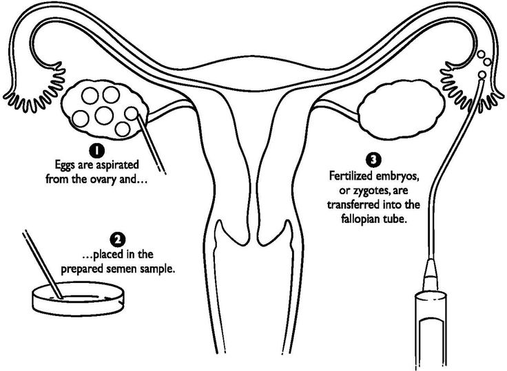 57 best Female Reproductive System images on Pinterest
