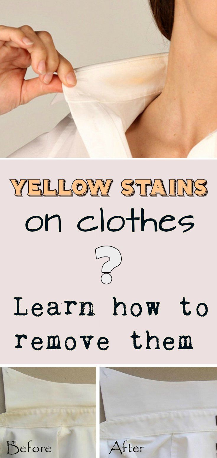 Yellow stains on clothes learn how to remove them for Removing sweat stains from white shirts