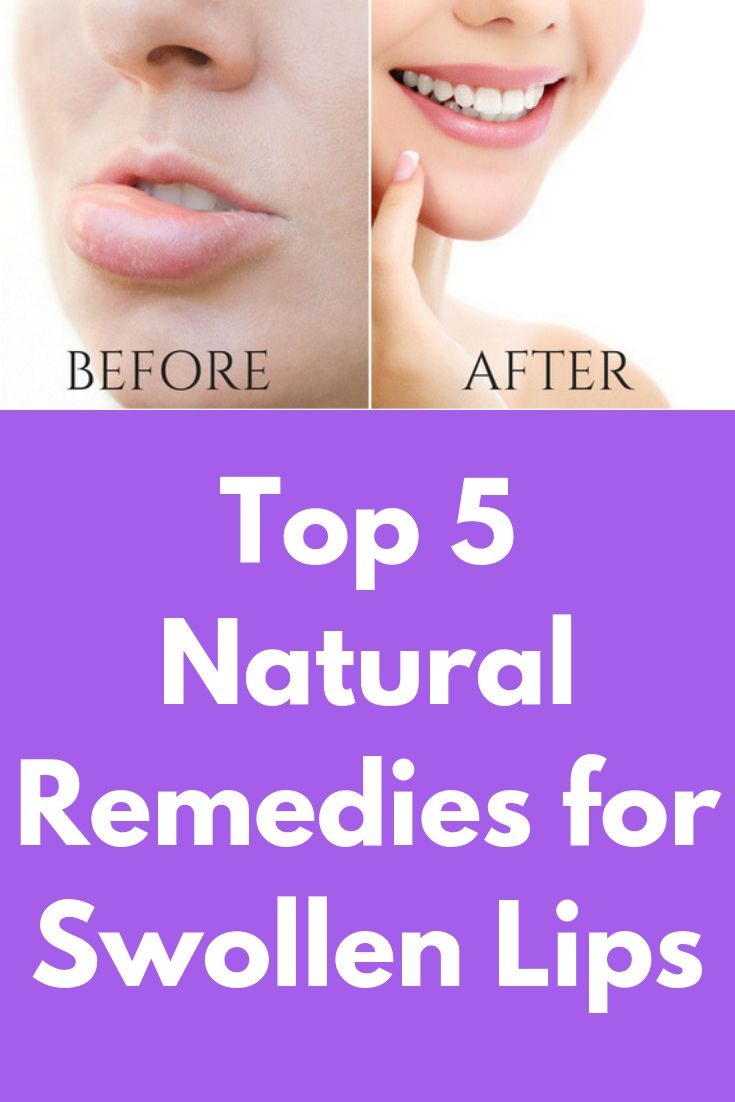 Top 5 Natural Remedies for Swollen Lips Are your lips
