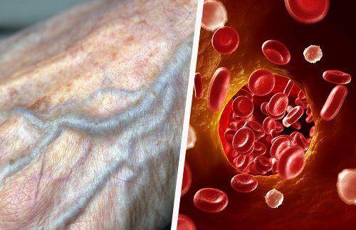 Jak naturalnie poprawić krążenie krwi?