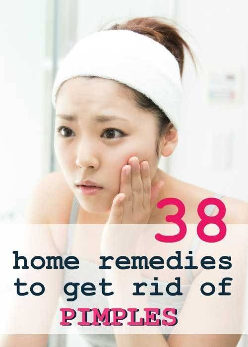 38 Natural Remedies to Get Rid of Pimples