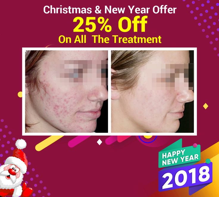 Botox Treatment In Delhi | Best Skin Specialist | Dermatologist In Delhi | Contact Us | Look Young Clinic