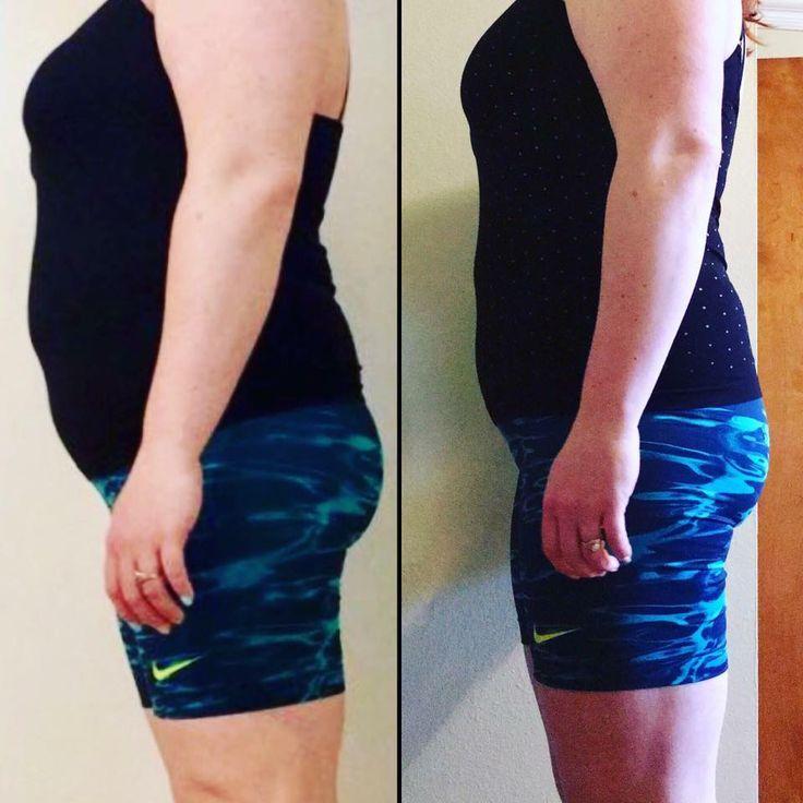 Weight loss phentermine sacramento ca