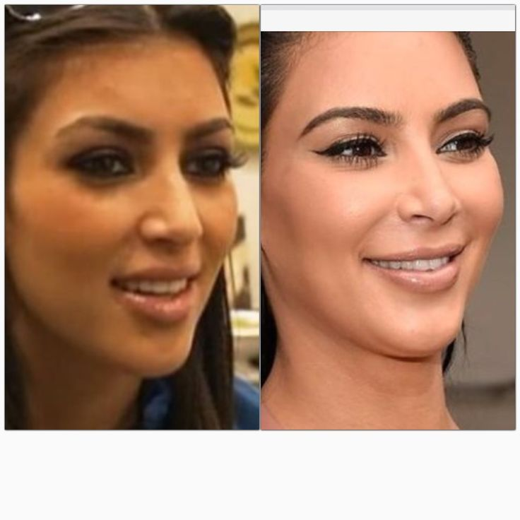 22 best plastic surgery pics images on pinterest plastic surgery kim kardashian and nose jobs. Black Bedroom Furniture Sets. Home Design Ideas