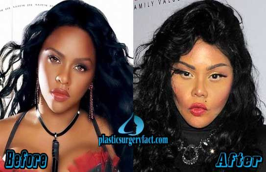 Lil Kim Before and After Plastic Surgery | Worst Celebrity Plastic Surgery | http://plasticsurgeryfact.com/too-much-plastic-surgery-before-and-after-worst-celebrity-plastic-surgery/