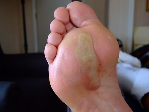 17 Best Images About Blisters On Pinterest