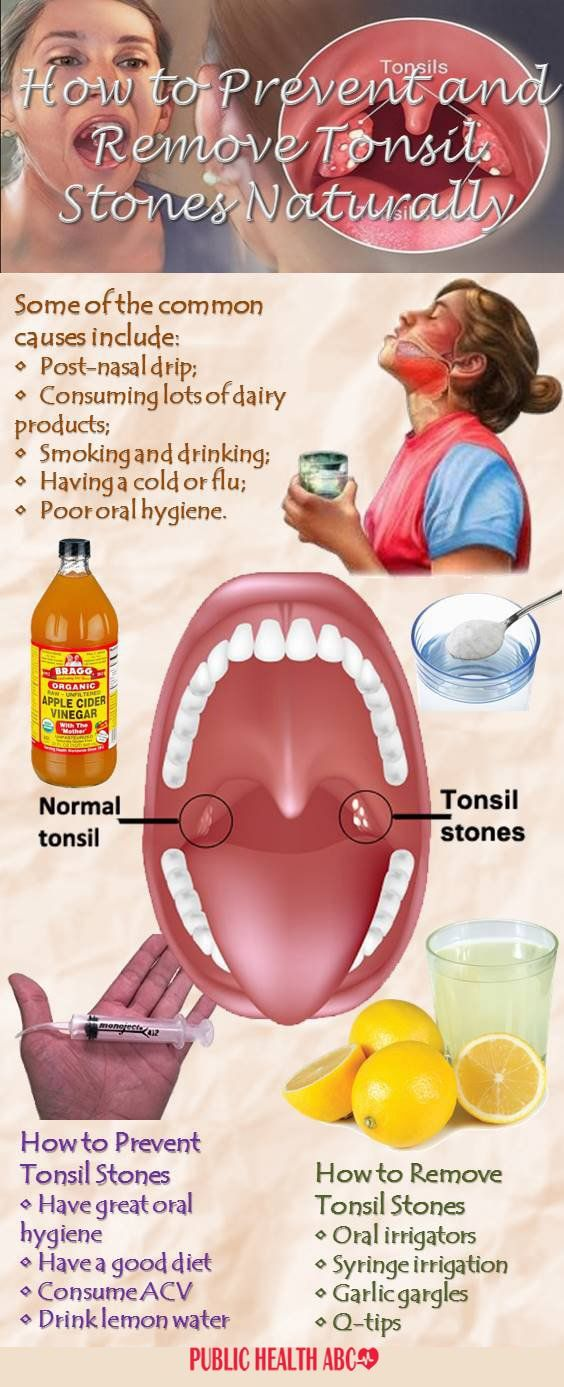 Although quite common, tonsil stones are rarely talked about, which is a shame, considering how uncomfortable and stubborn they can be. The Cause Tonsil stones are hardened and calcified debris, usual
