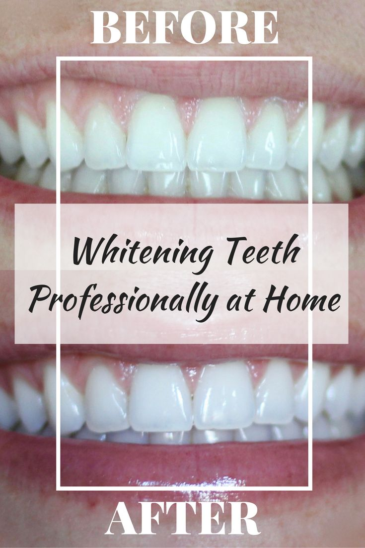 Whitening Teeth | Professional Teeth Whitening | Whitening Teeth at home | Whiter Teeth | Tips for Whiter Teeth | Wine Stains Teeth | Coffee Stains Teeth| Smile Brilliant | #ad