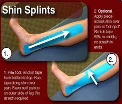 Bildergebnis für shin splints tapen