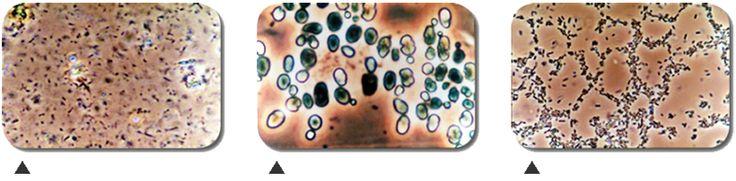 batteri dell'acido lattico, muffe e lieviti selezionati da Teruo Higa per la salvezza del pianeta