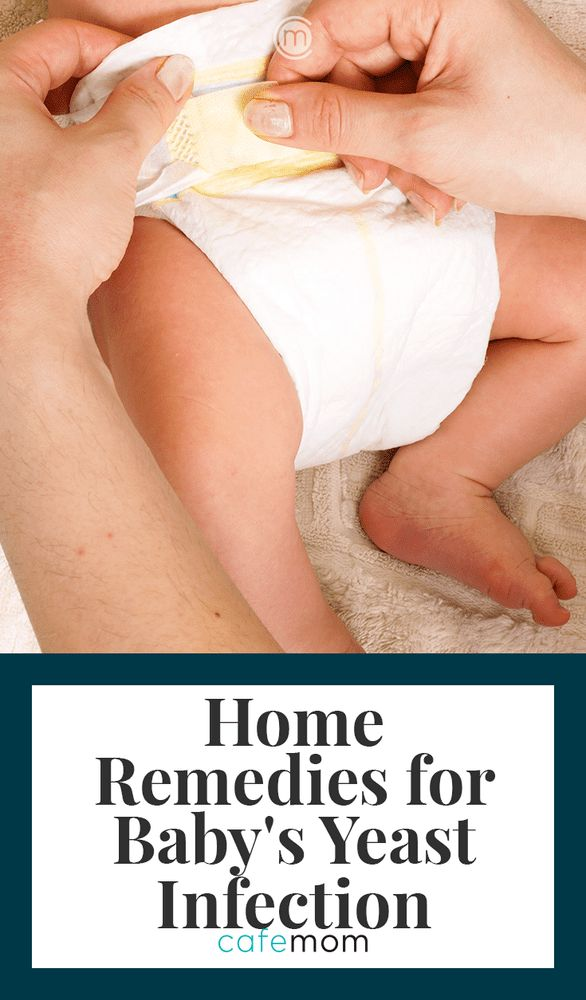 Yeast infections can happen to baby girls and boys alike. Take a look at these  natural, tried-and-true ways to help treat baby's yeast infection at home without meds. #naturalremedies #naturalhealth
