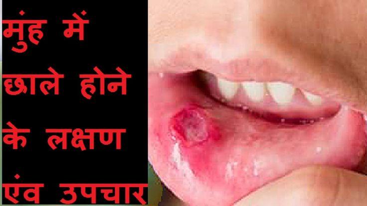 मुंह में छाले होने के लक्षण एंव उपचार Muh ke chhale theek karne ka upaay