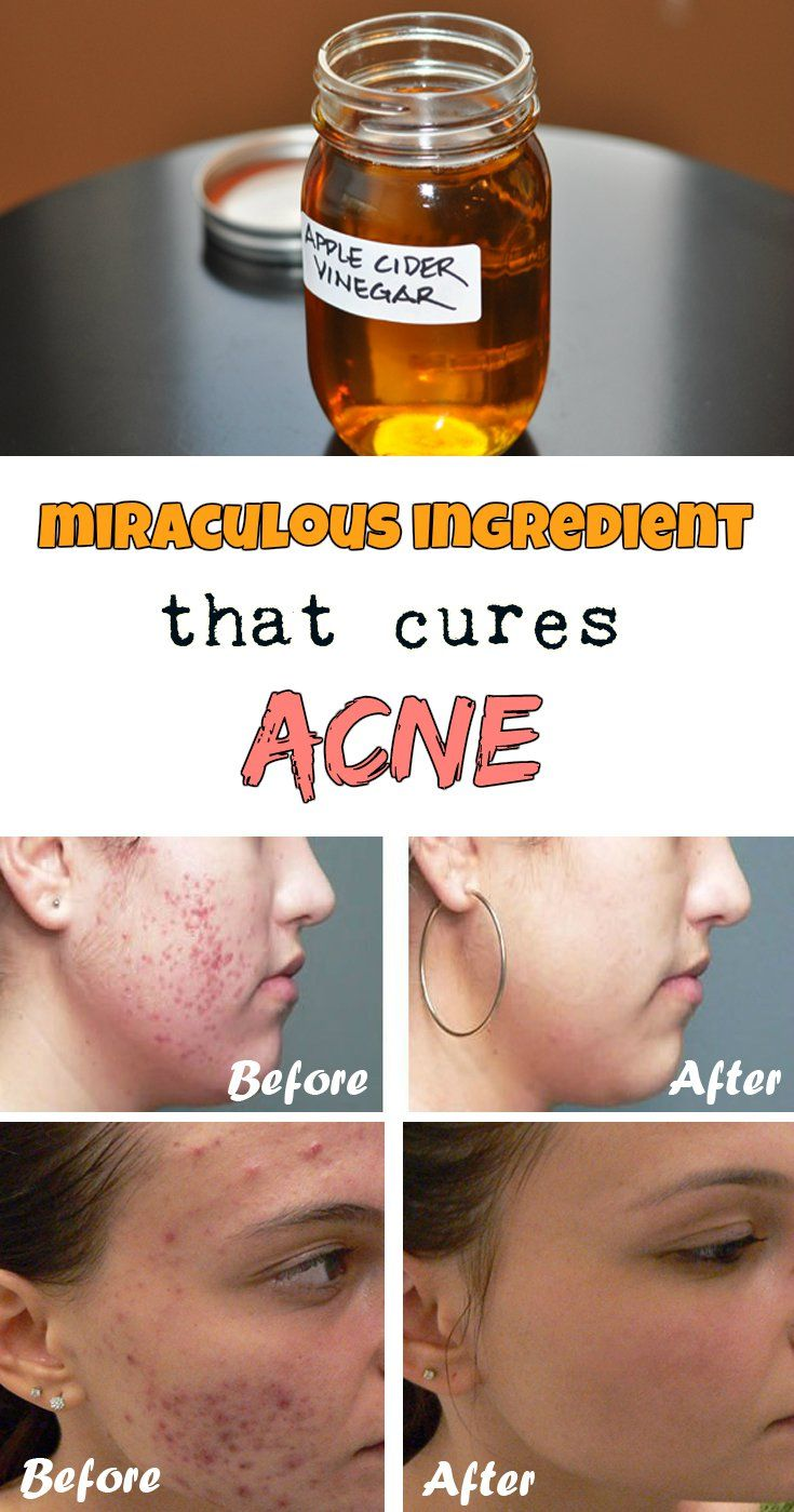 MIRACULOUS INGREDIENT THAT CURES ACNE