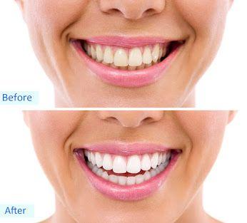 Przeprowadzenie zabiegu wymaga wiedzy i odpowiedniego przeszkolenia, dlatego wykonywać może go wyłącznie lekarz - stomatolog. Profesjonalnie przeprowadzona procedura jest bezpieczna dla szkliwa i komfortowa dla Pacjenta.  Chętnie odpowiemy na wszelkie Twoje pytania. http://dentalmed.net.pl/