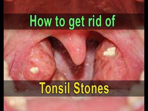 Tonsil Stone Removal Kit