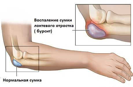 Фитнес-блог: Воспаление локтевого сустава