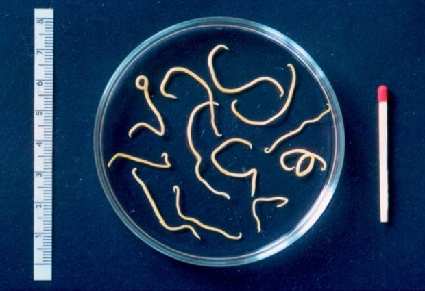 Střevní paraziti jsou paraziti, kteří nejsou sami o sobě životaschopní, dokážou přežít a rozmnožovat se výlučně jen díky hostiteli (člověk anebo zvíře).Parazitní onemocnění v organismu člověka způsobují střevní paraziti, anebo jejich larvy. Onemocnění se šíří infekcí, často bývá úplně nepozorovatelné, ale v organismu postupně způsobuje poruchy. Nejnebezpečnější formou infekce u člověka je, když střevní paraziti a jimi způsobená infekce zůstanou bez příznaků, a tak vznikne onemocnění…