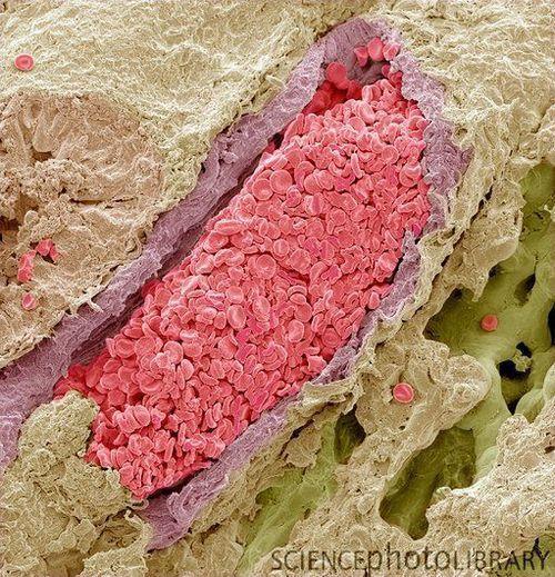 Sang-rempli veine pulmonaire. Micrographie de couleur électronique à balayage (MEB) d'une section à travers une veine pulmonaire (en violet) dans le tissu pulmonaire (vert / beige), montrant les globules rouges (érythrocytes, rose) inside.