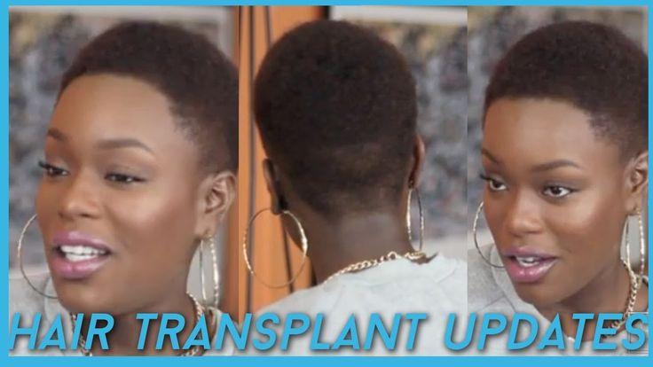 Hair Transplant \ Hairline lowering UPDATES + Favorites Natural Hair Pro...