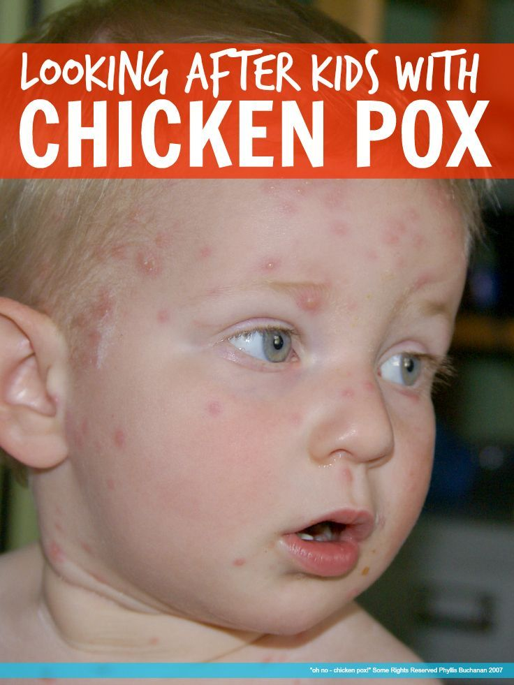 Worried about how to cope with Chicken Pox and the dreaded itching? Here's how we got our five year old through Chicken Pox with NO itching and no scarring!