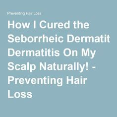 How I Cured the Seborrheic Dermatitis On My Scalp Naturally! - Preventing Hair Loss