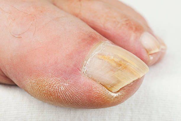 How To Get Rid Of Fungus From Acrylic Nails Fungal Infection Of Nail Nail Fungus Cure Nail Fungus Remedy Nail Fungus