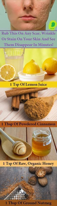 Cinnamon, honey, nutmeg and lemon juice are ingredients you probably already have at home. Gather those and use this recipe to wipe away wrinkles and blemishes.