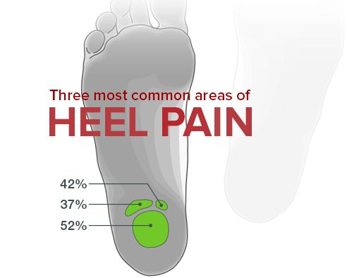 Plantar Fasciitis: Best Treatments for Symptoms and Causes of Plantar Fasciitis KURU Shoes for Plantar Fasciitis
