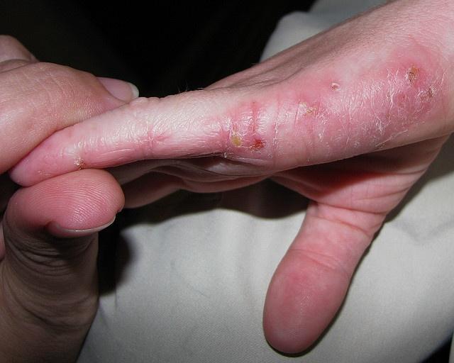 93 Best Eczema Images On Pinterest Eczema Treatment