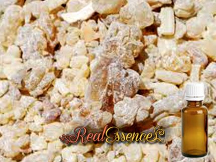 Frankincense 100% Pure & Natural AROMATHERAPY Essential Oil 100ml