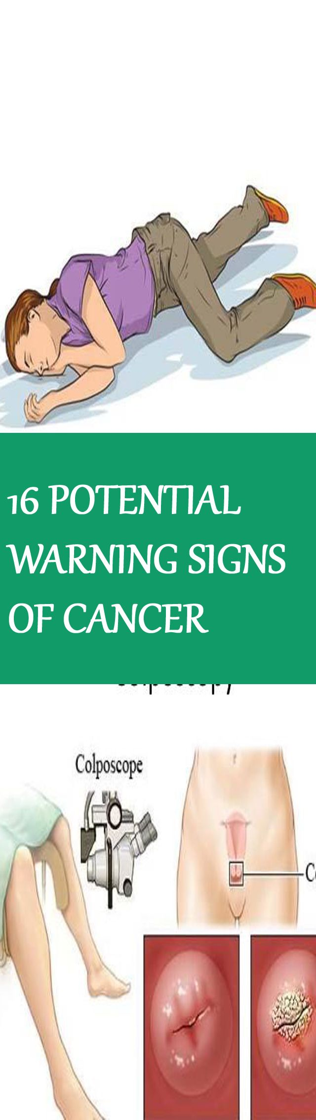 16 POTENTIAL WARNING SIGNS OF CANCER THAT PEOPLE TOO OFTEN IGNORE