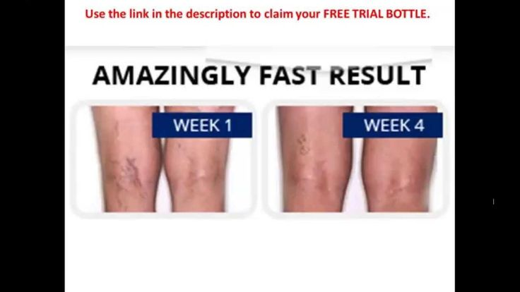 How to Get Rid of Varicose Veins Naturally - Varicose Veins Remedy