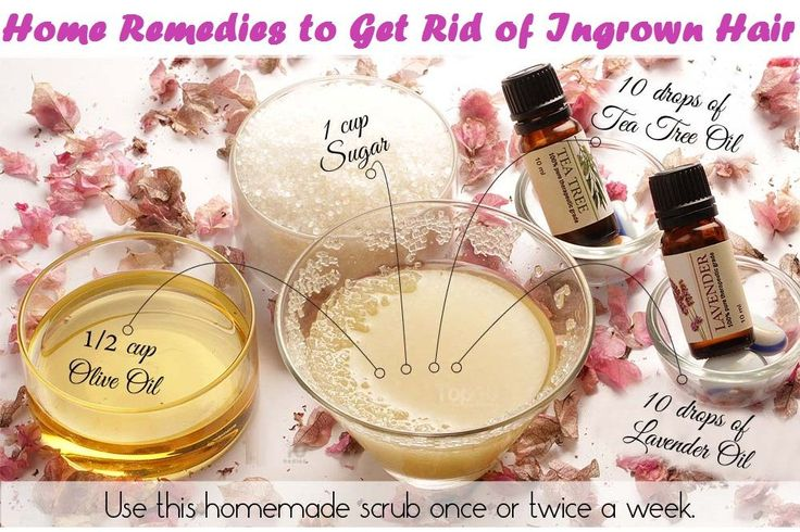 DIY Sugar Scrub to get rid of Ingrown Hair - You must try it to get desired results.