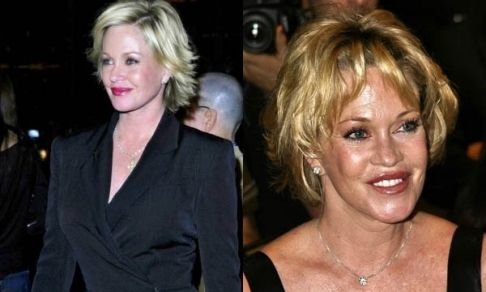 8 Best Images About Celebrity Botox Amp Fillers Before And