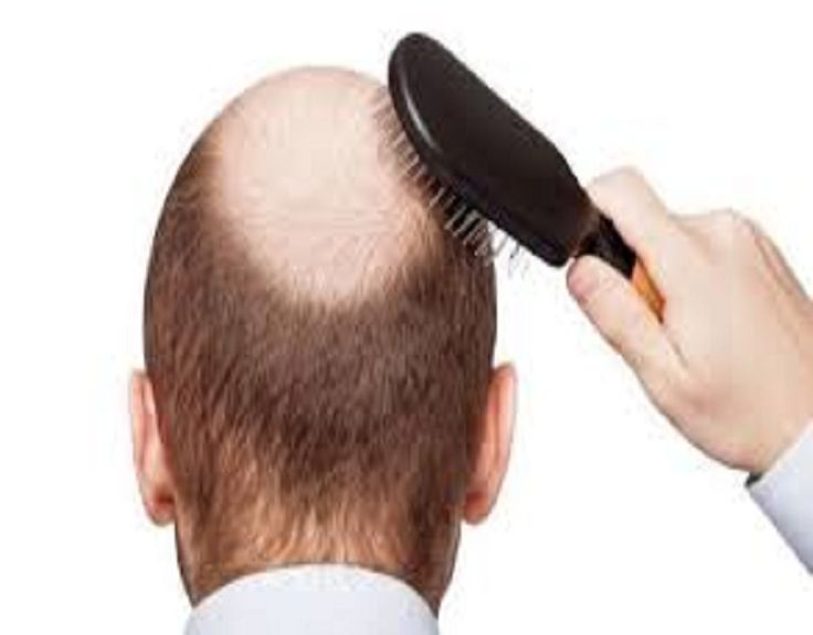Nowadays a number of people are facing the hair fall problem, If you are looking for the best hair transplant in the UK then contact Revive Hair and skin. We provide the best treatment at low cost. Contact us for an instant appointment at info@revivehairandskin.co.uk.