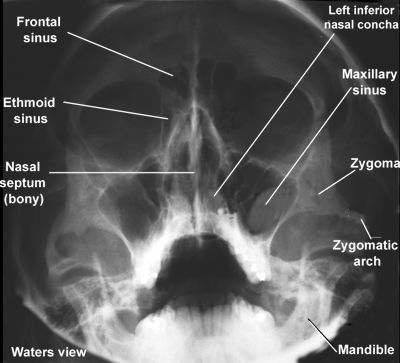 X-ray of facial structures, Waters view: I remember those days of memorizing