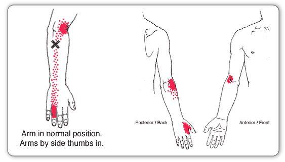 best 25  tennis elbow symptoms ideas on pinterest