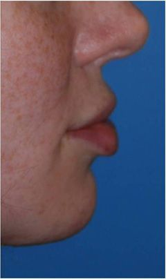 Dr. Philip Young   Aesthetic Facial Plastic Surgery Seattle   Bellevue Discusses…