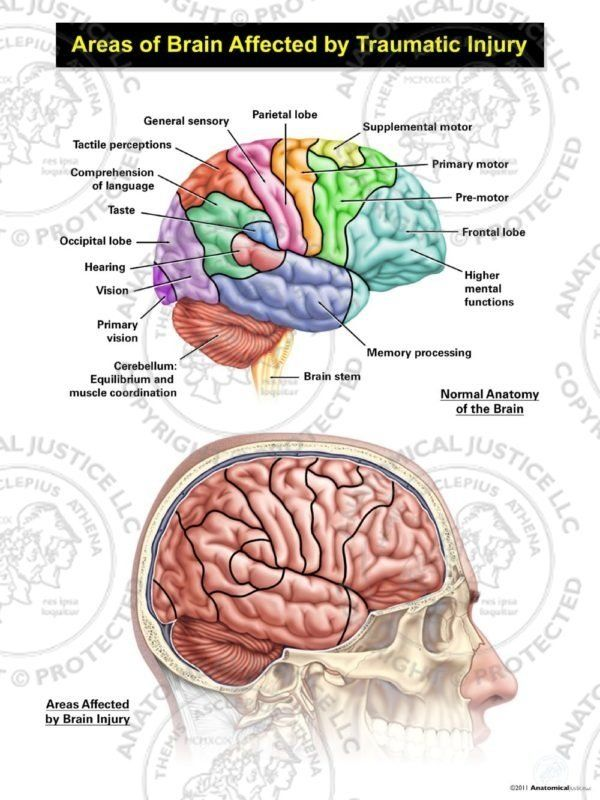 Areas Of Cognitive Brain Function And Global Brain Contusions Human Brain Anatomy Brain Anatomy Brain Anatomy And Function