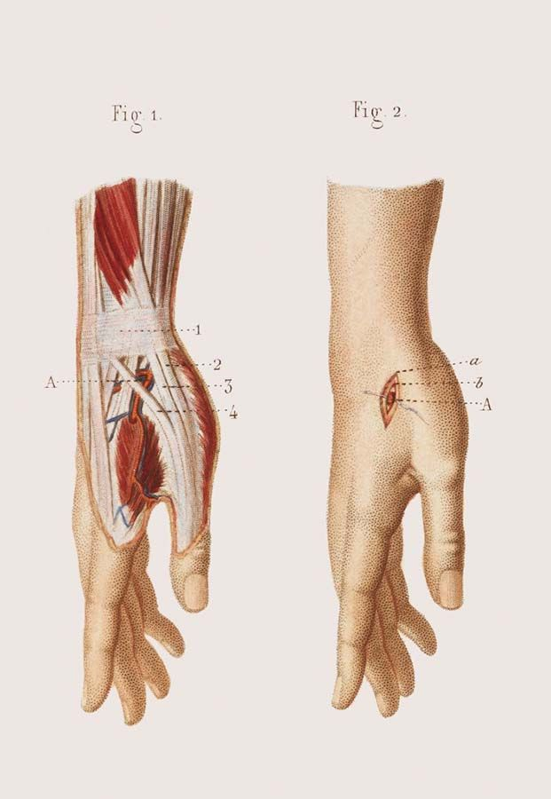 14 best Crucial Interventions images on Pinterest | Surgery, Vintage ...