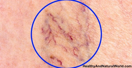 The Best Home Remedies to Get Rid of Spider Veins: May 12, 2015 Beauty ~ What are spider veins? Spider veins, medically known as telangiectasias or angioectasias, are similar to varicose veins, but smaller. These tiny veins, found close to the surface of the skin, resemble spider webs or branches of a tree and are usually red, purple or blue. Most often, spider veins are found on the legs (thighs, back of the calves, insides of the legs, ankles). This is due to the…
